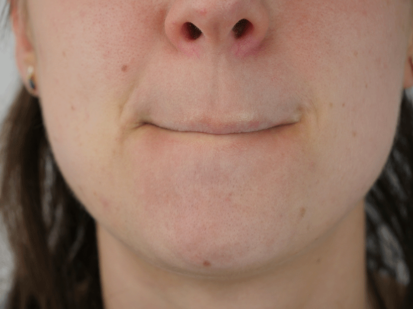 Soin Réparateur Lèvres - KARETHIC - Etape 2