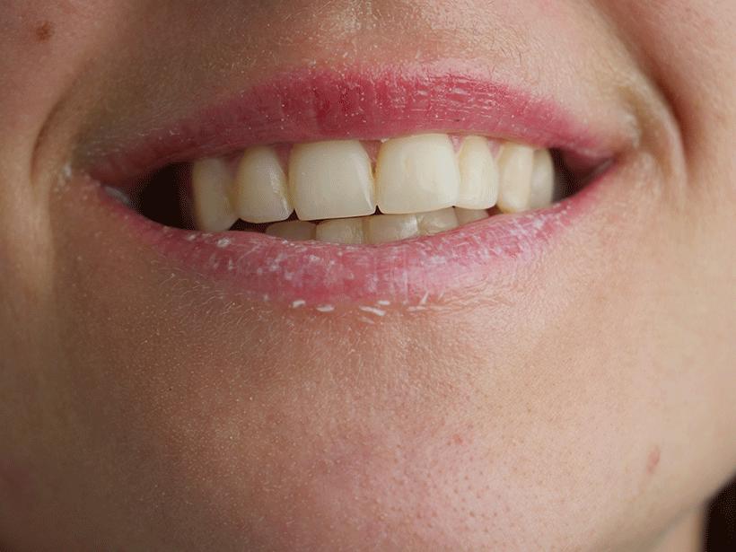 Gommage Lèvres - BIOTYFULL BOX - Etape 3