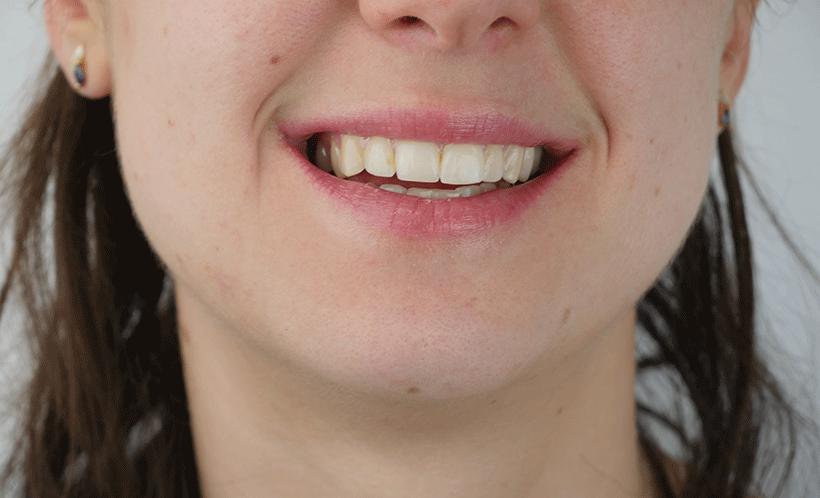 Soin Réparateur Lèvres - KARETHIC - Etape 3
