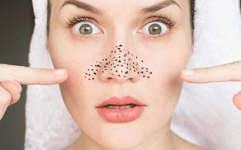 Points Noirs et Pores Dilatés : Comment éviter les points noirs et pores dilatés ?