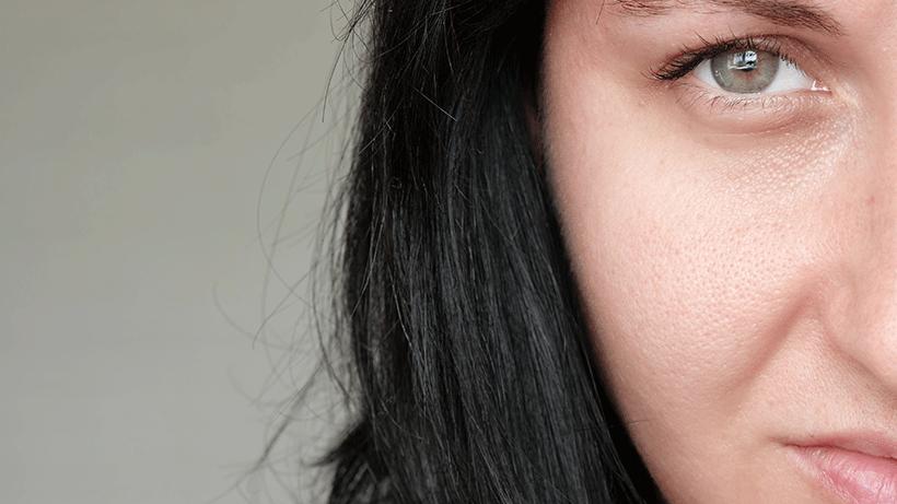 points-noirs-pores-dilates-2