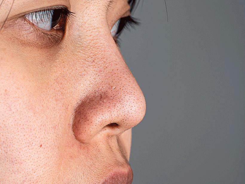 points-noirs-pores-dilates-9